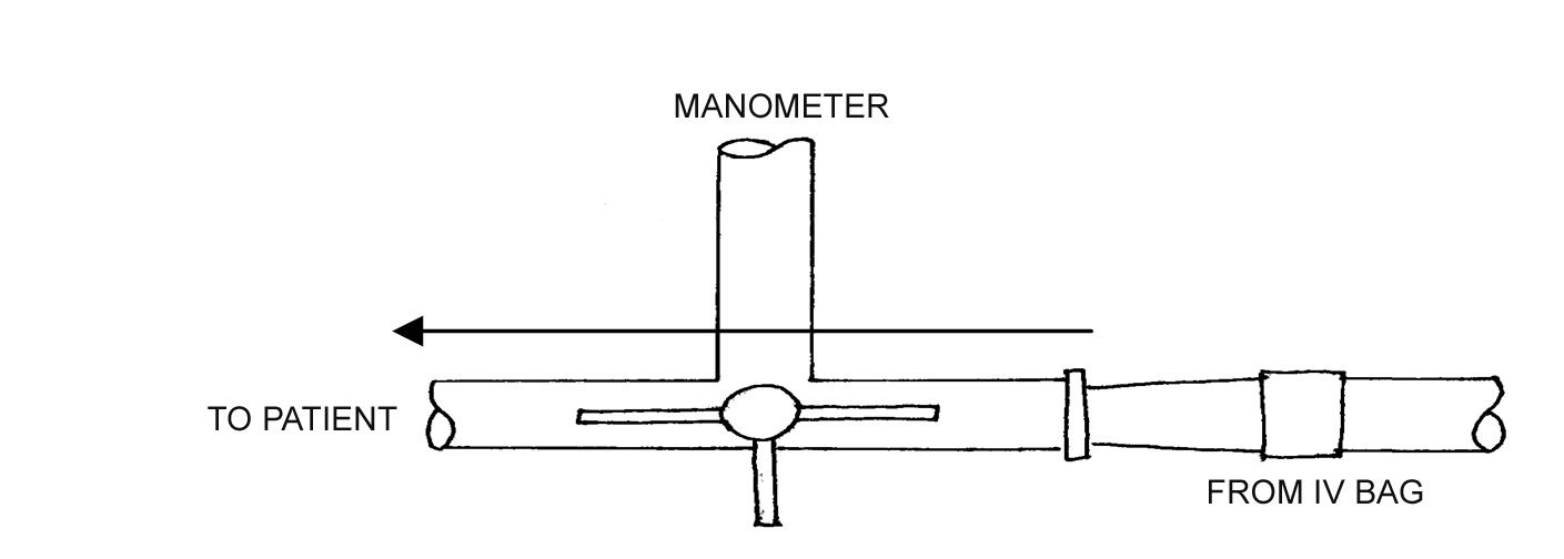 Circulation Skills 3 Central Venous Pressure Measurement